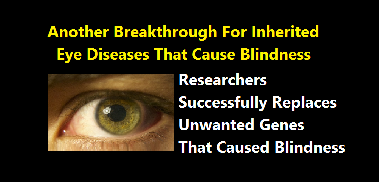 Researchers Successfully Replaces Unwanted Genes That Caused Blindness