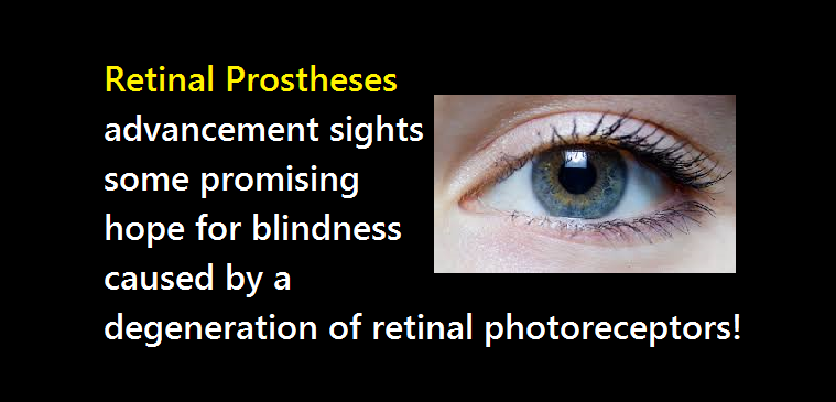 Retinal Prostheses Advancement Sights Some Promising Hope